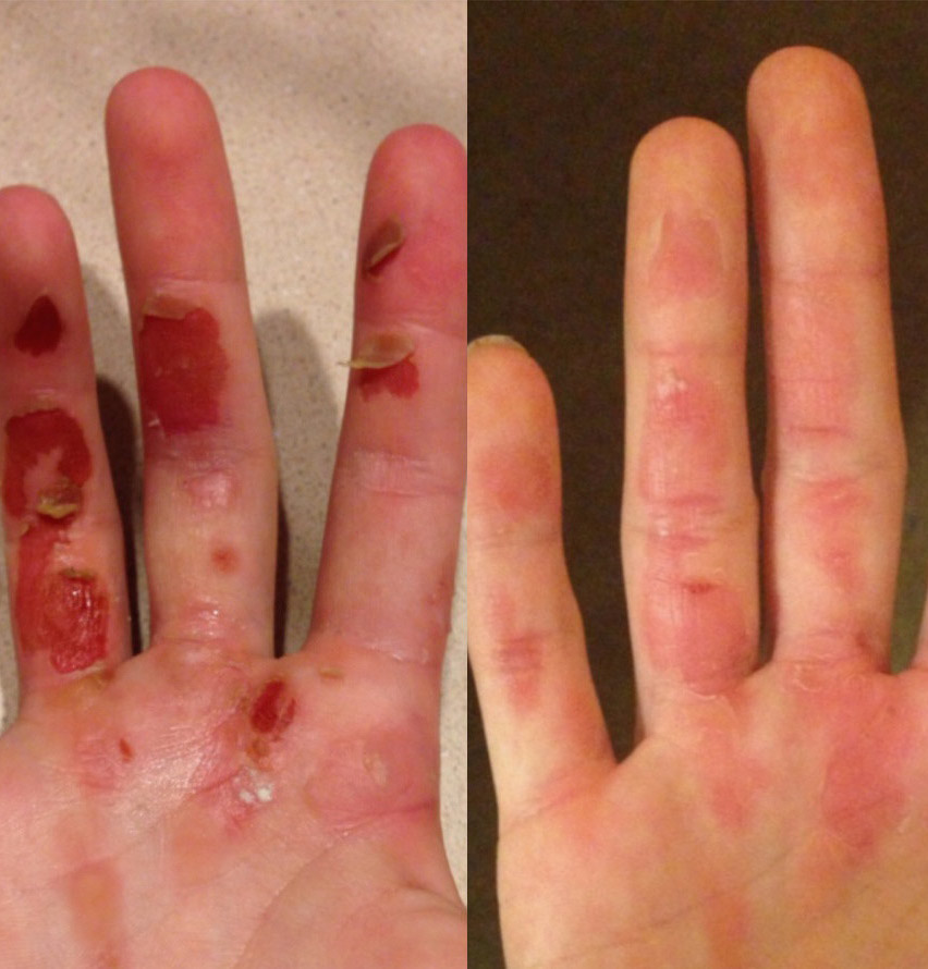 blisters rowing gloves